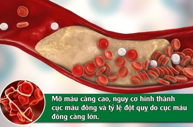 mỡ máu đột quỵ