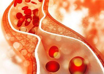 rối loạn lipid máu