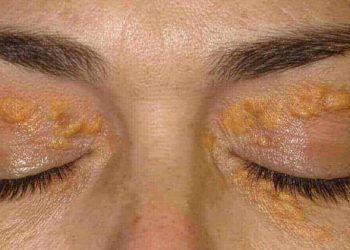 u vàng ở mắt